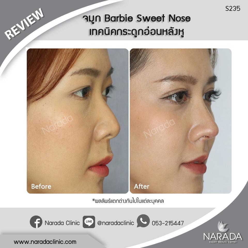 Review เสริมจมูก Barbie Sweet Nose