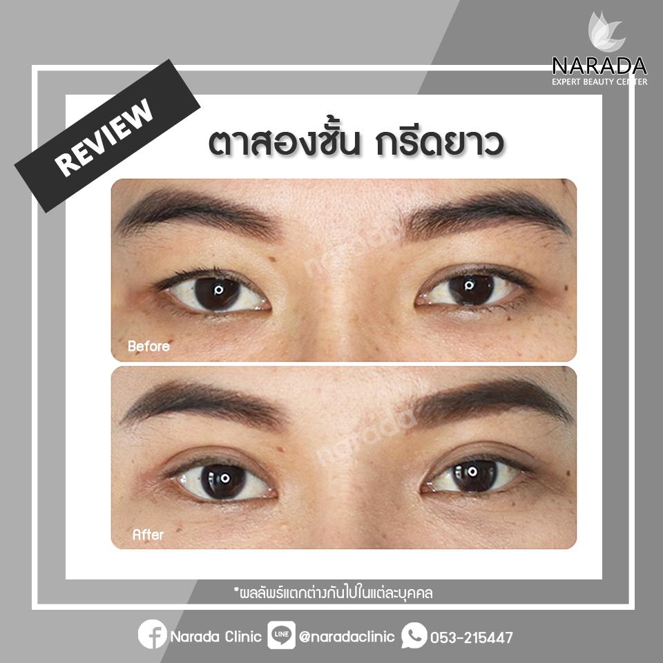 Review ตาสองชั้น