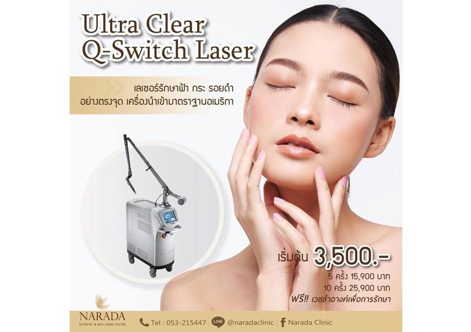 ฝ้ากระจุดด่างดำรักษาได้ด้วย Q Switch Laser