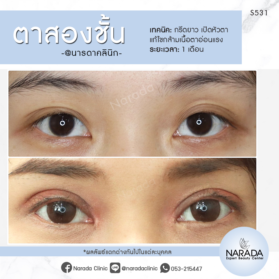 รีวิวทำตา 2ชั้น แก้ปัญหากล้ามเนื้อตาอ่อนแรง