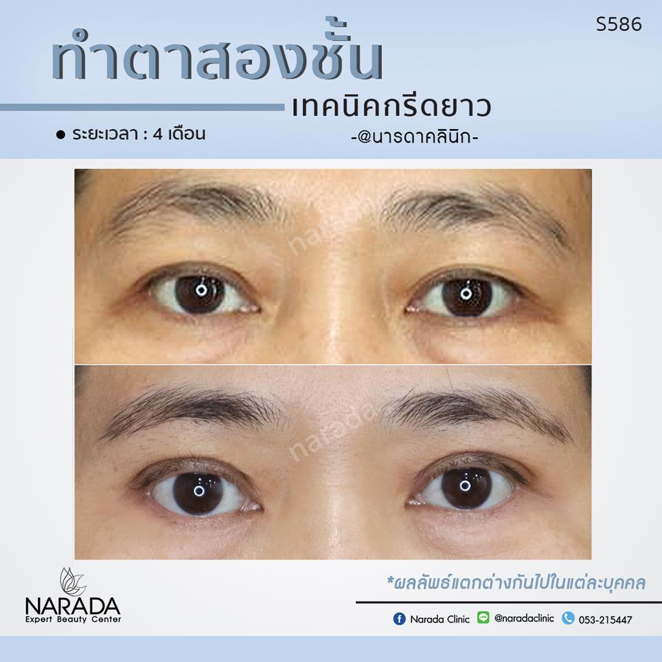 ทำตา 2 ชั้น เทคนิคกรีดยาว แก้ปัญหาชั้นตาไม่เท่ากัน