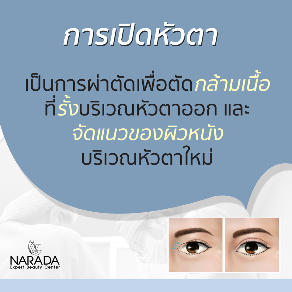 การเปิดหัวตาคืออะไร