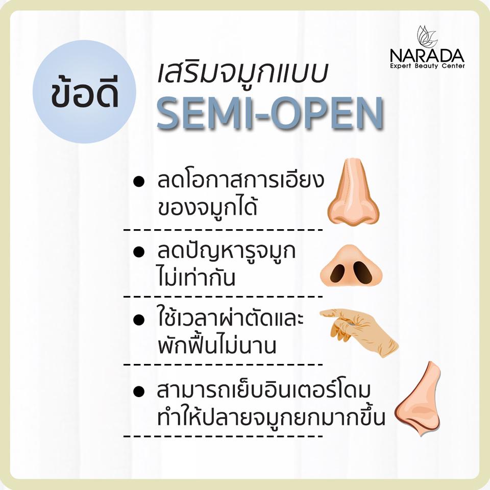 เสริมจมูกเทคนิค semi open