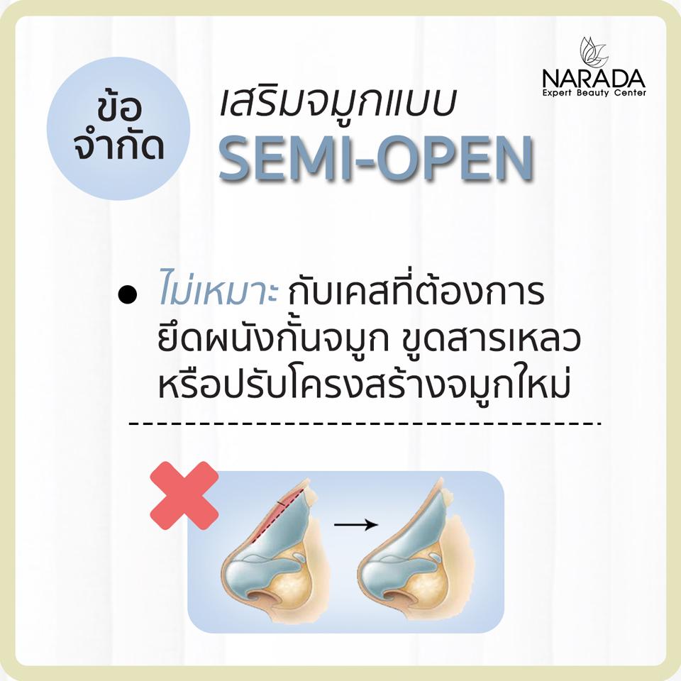 เสริมจมูกแบบ semi open คืออะไร
