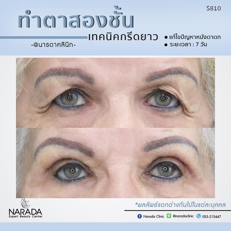 ตาสองชั้น เทคนิคกรีดยาว แก้ไขปัญหาหนังตาตก