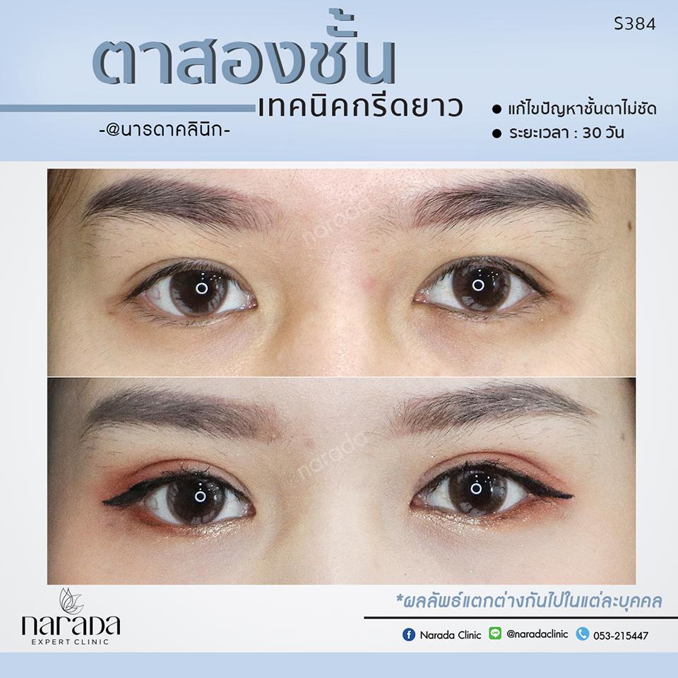 ตาสองชั้น เทคนิคกรีดยาว แก้ไขปัญหาชั้นตาไม่ชัด