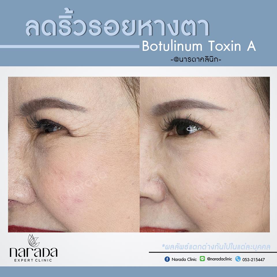 ลดเลือนริ้วรอยแห่งวัย ด้วยBotulinum Toxin A