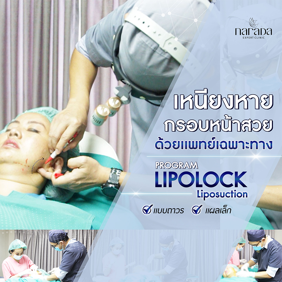 เหนียงหาย กรอบหน้าสวย ด้วยแพทย์เฉพาะทาง  โปรแกรม Lipolock-Liposuction