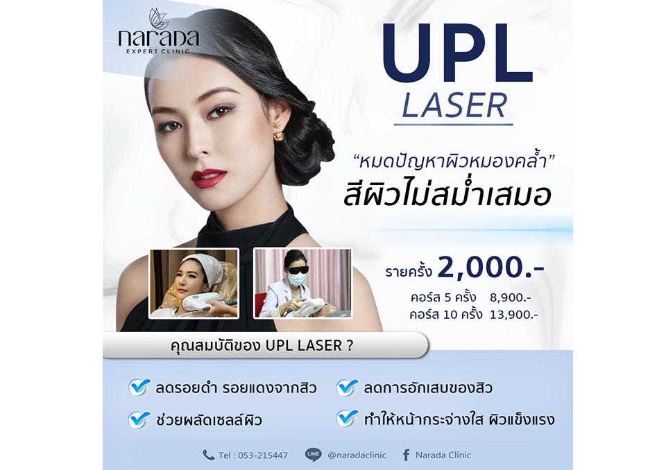 UPL Laser